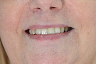 After - Ms M.C now smiles with pride revealing her aesthetic ceramic implant retained bridge with 4 teeth