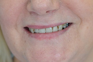 Before - Ms M.C had denture with visible and unsightly metal retainers