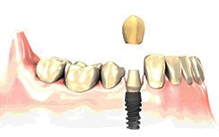 single tooth replacement gold coast