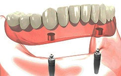 Removable-implant-overdentures Gold Coast