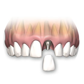 single-tooth-replacement-gold-coast-southport