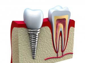 Gold Coast dental implants clinic