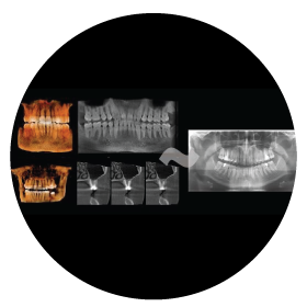 new-technologies-for-dental-implants