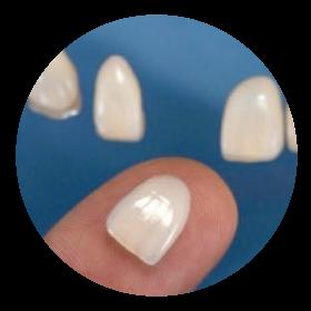 porcelain-veneers-dental-aesthetics